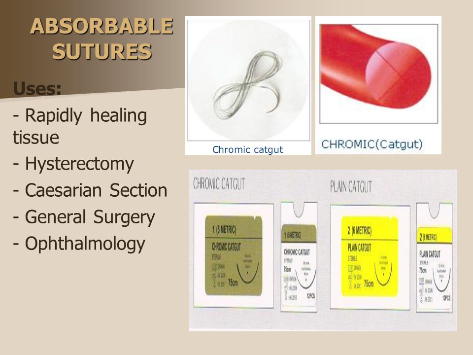 ABSORBABLE SUTURES Uses: - Rapidly healing tissue - Hysterectomy