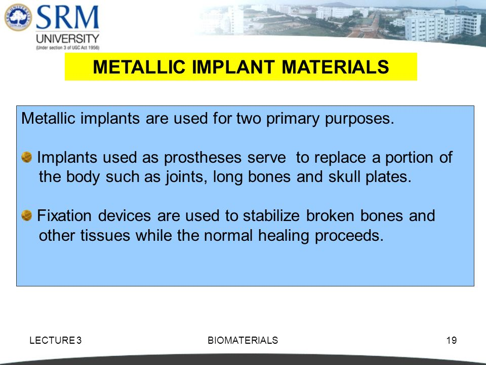 METALLIC IMPLANT MATERIALS