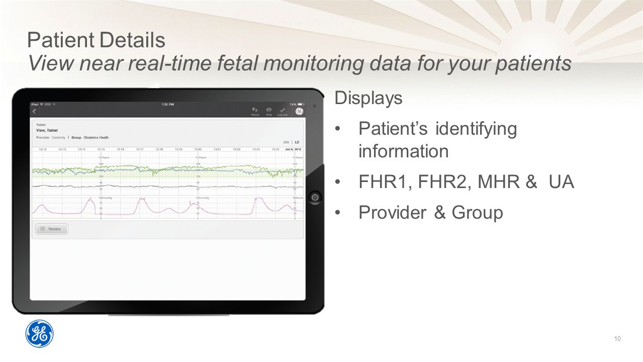 Patient Details View near real-time fetal monitoring data for your patients