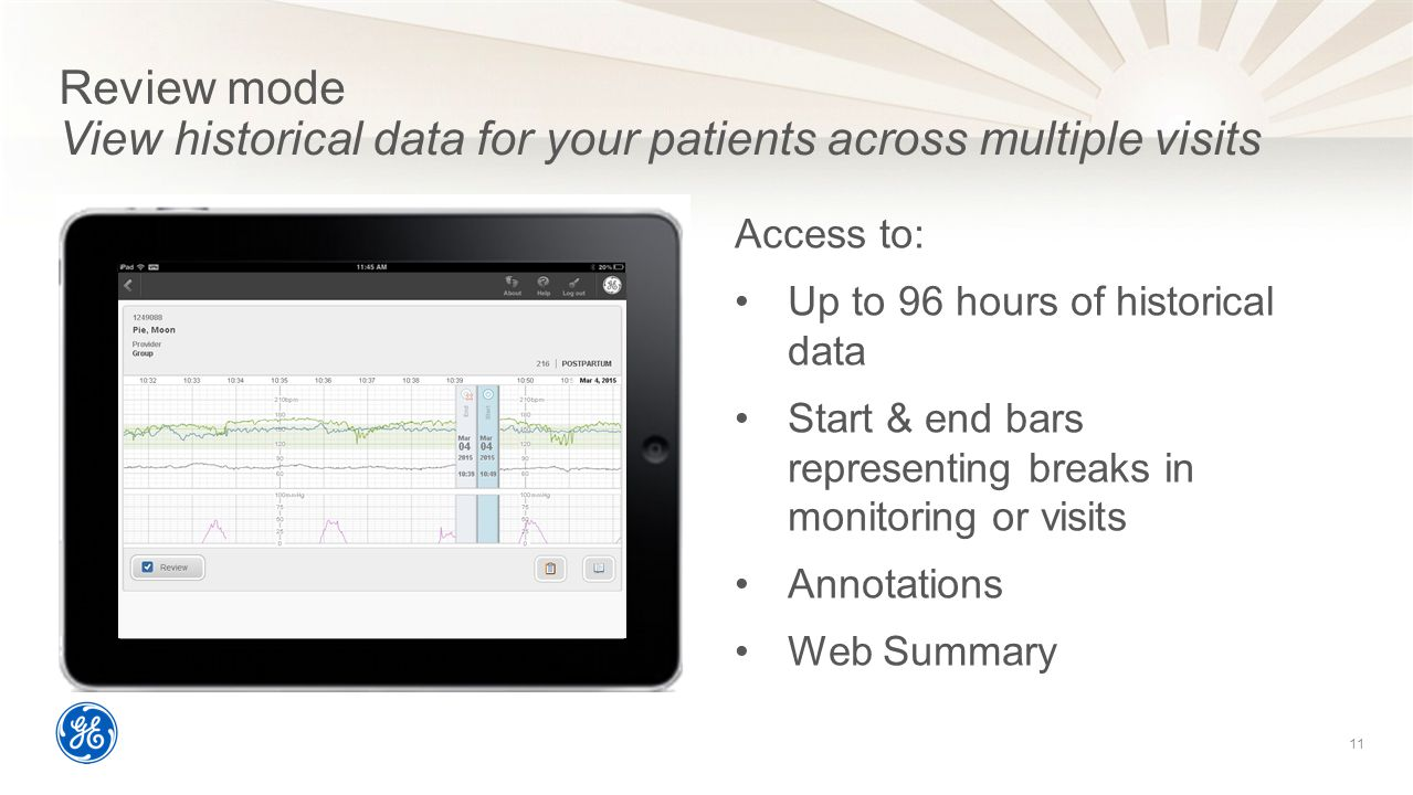 Review mode View historical data for your patients across multiple visits