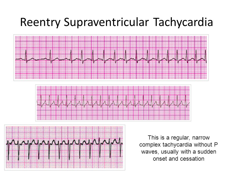 Reentry Supraventricular Tachycardia