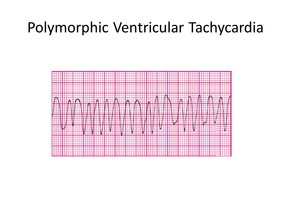 Polymorphic Ventricular Tachycardia
