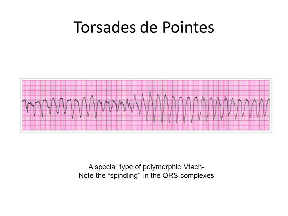 Torsades de Pointes A special type of polymorphic Vtach-
