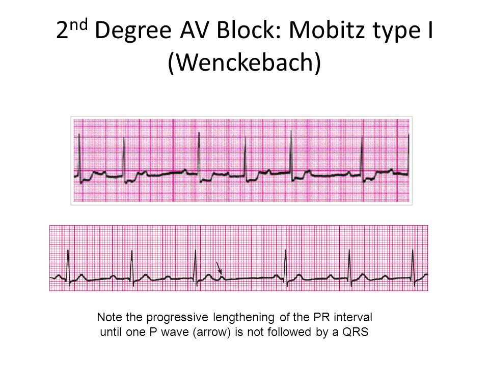 2nd Degree AV Block: Mobitz type I (Wenckebach)