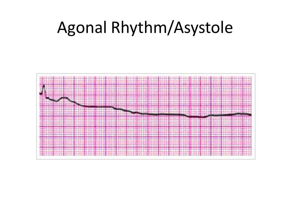 Agonal Rhythm/Asystole