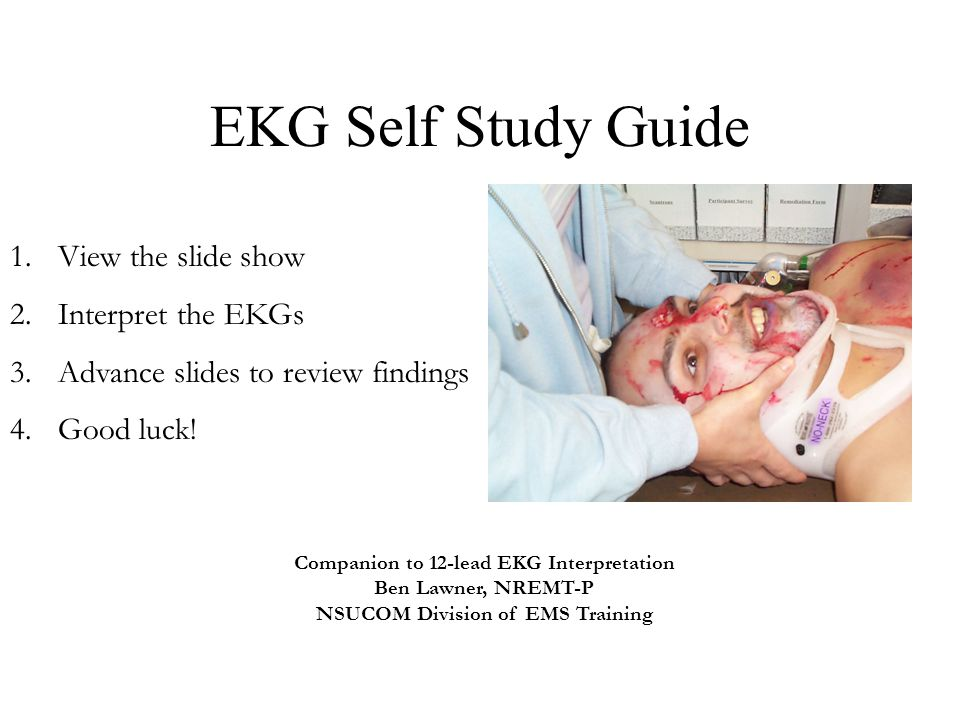 EKG Self Study Guide View the slide show Interpret the EKGs