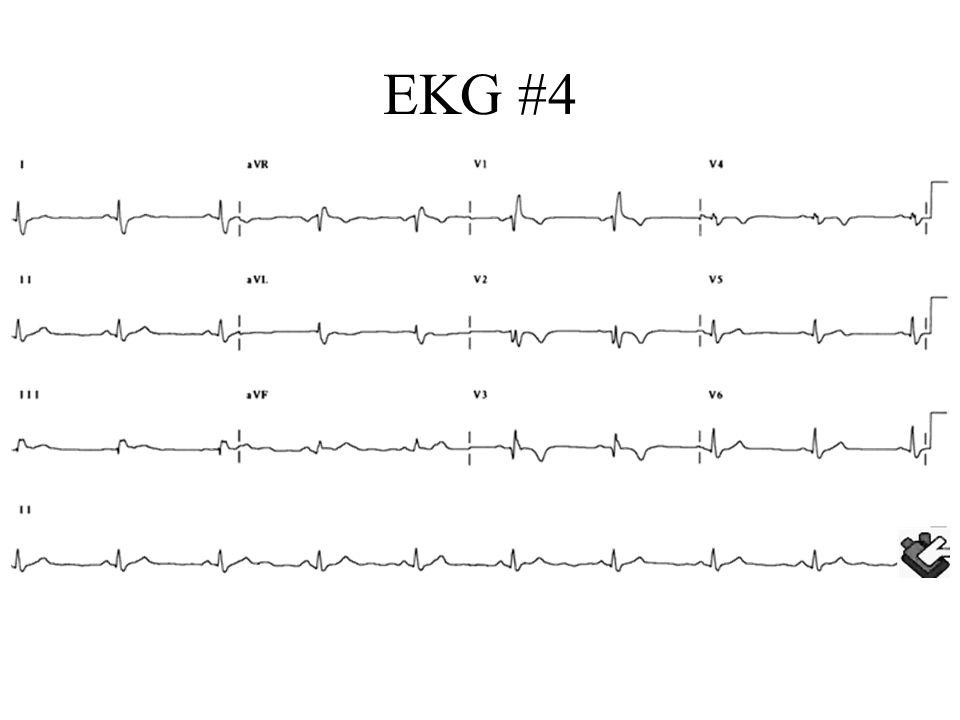 EKG #4