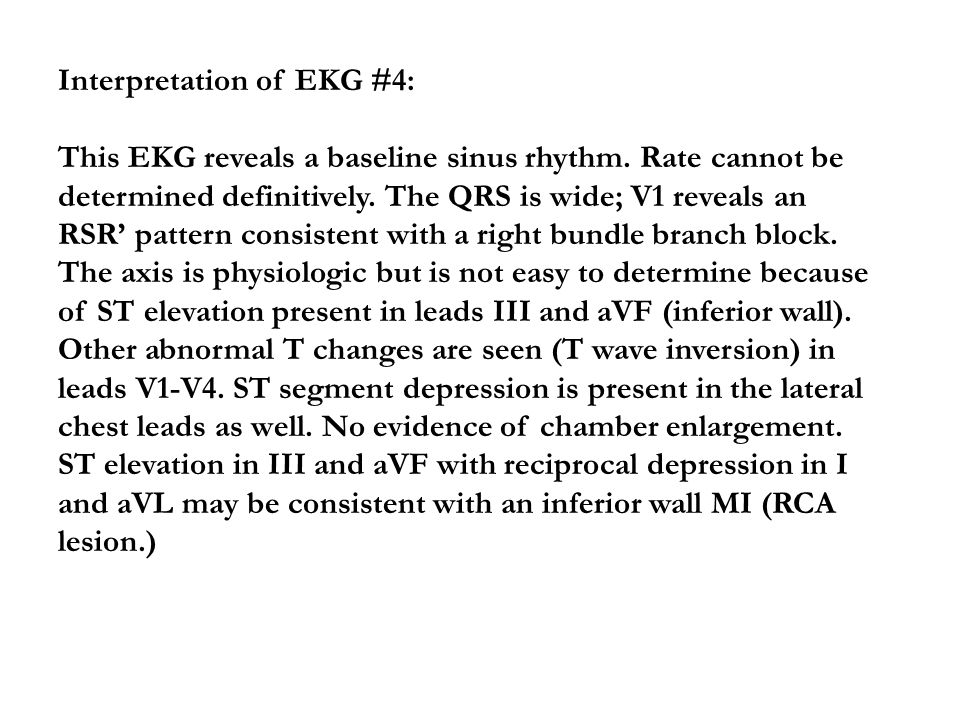 Interpretation of EKG #4: This EKG reveals a baseline sinus rhythm