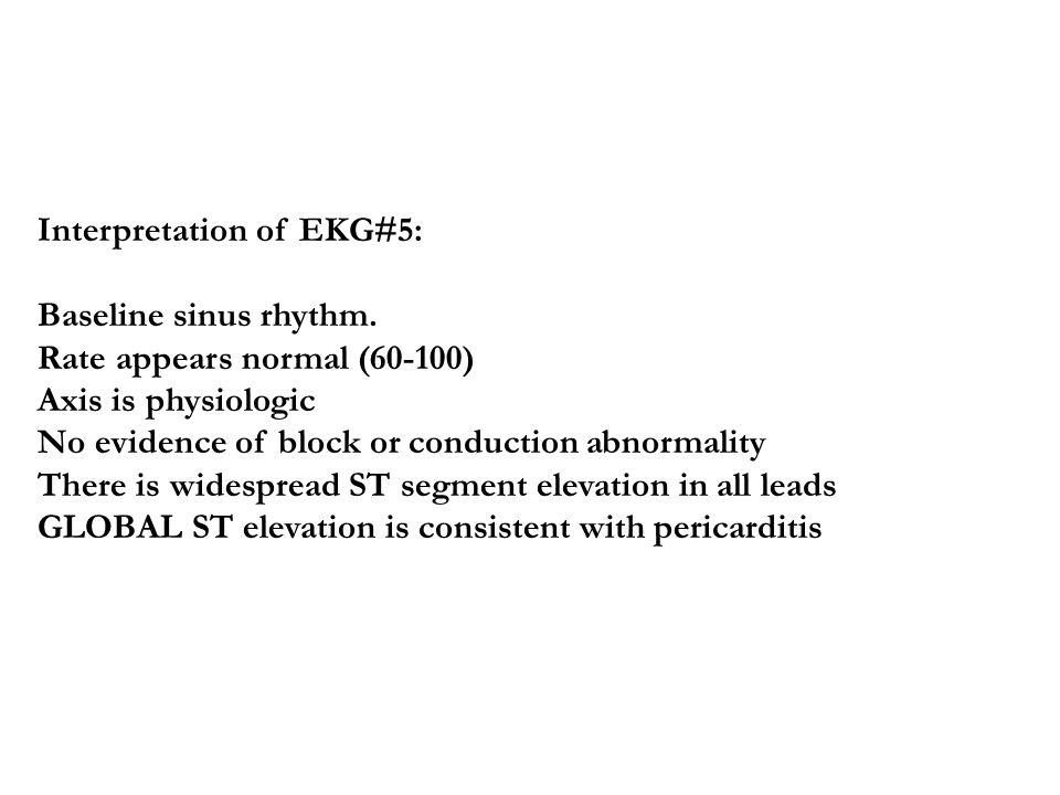 Interpretation of EKG#5: Baseline sinus rhythm