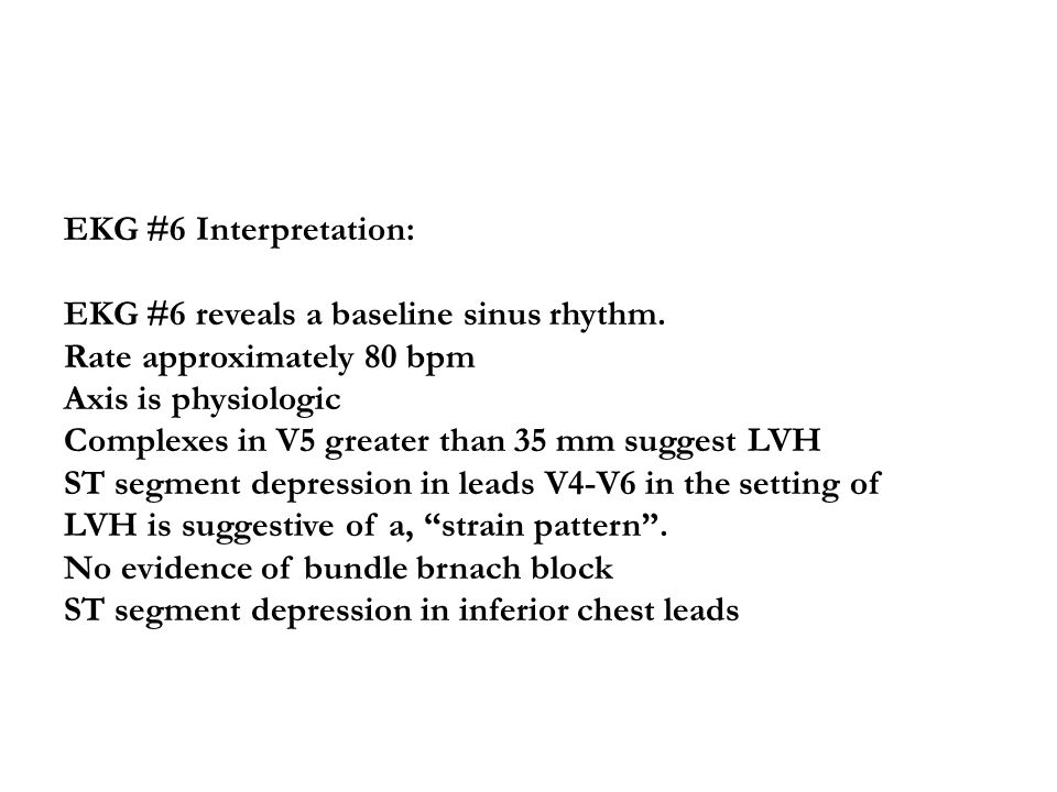 EKG #6 Interpretation: EKG #6 reveals a baseline sinus rhythm