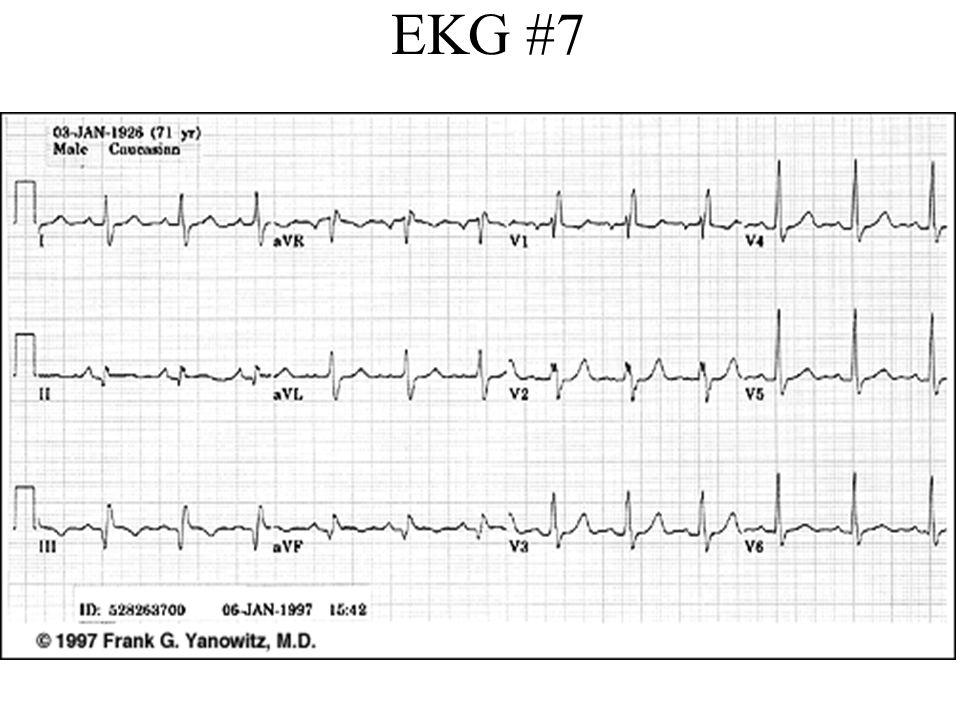 ECG Study Guide - bannerhealth.com