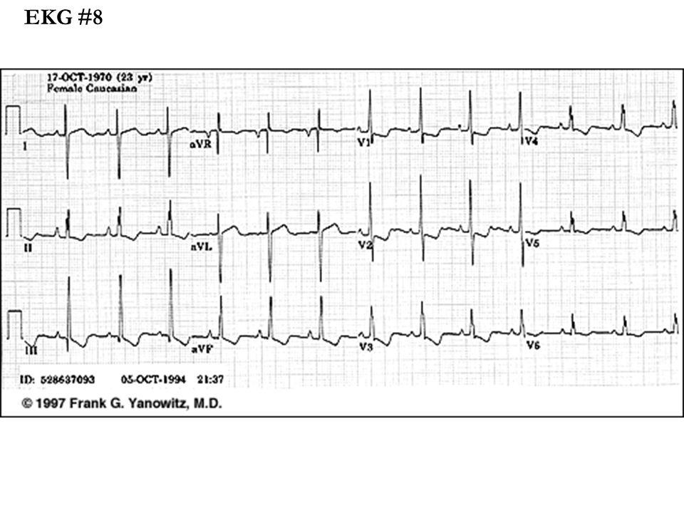 EKG #8