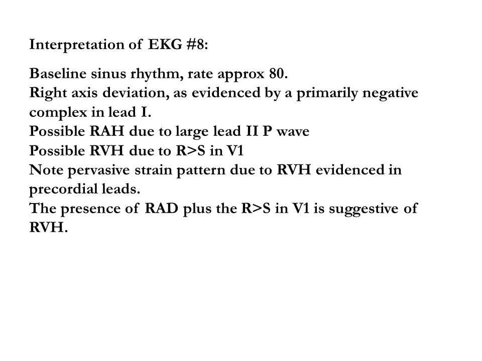 Interpretation of EKG #8:
