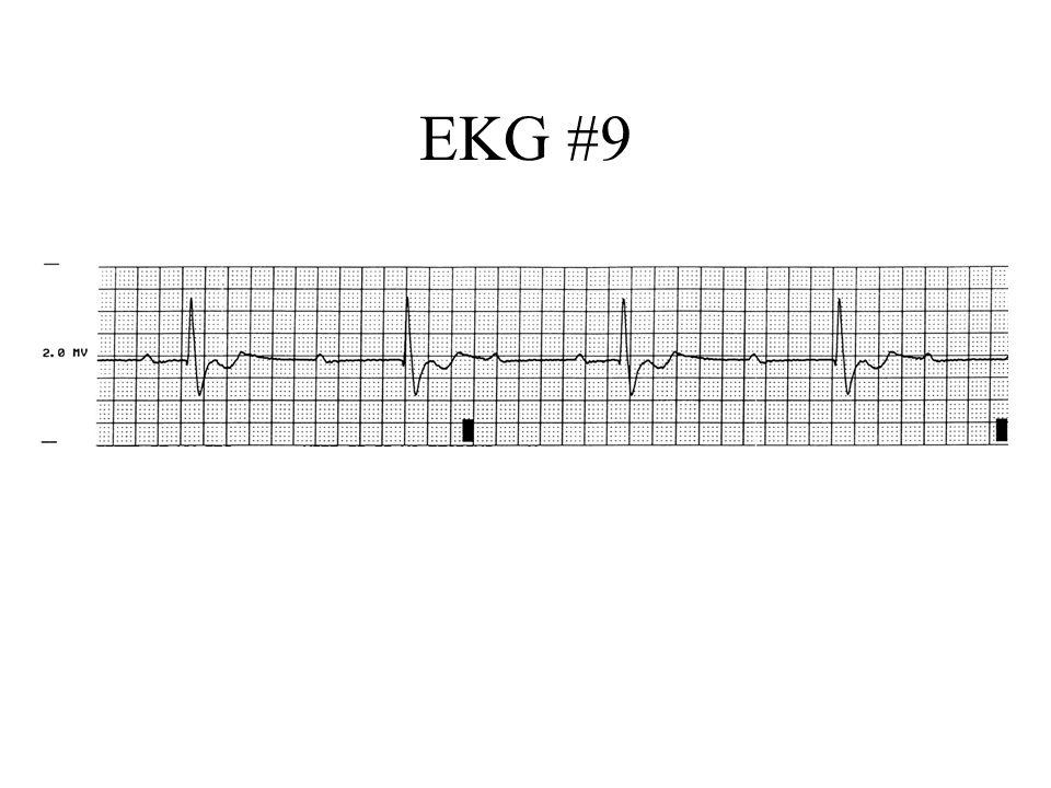 EKG #9