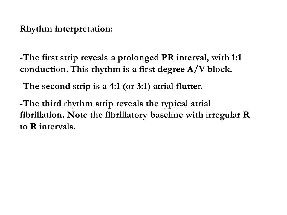 Rhythm interpretation: