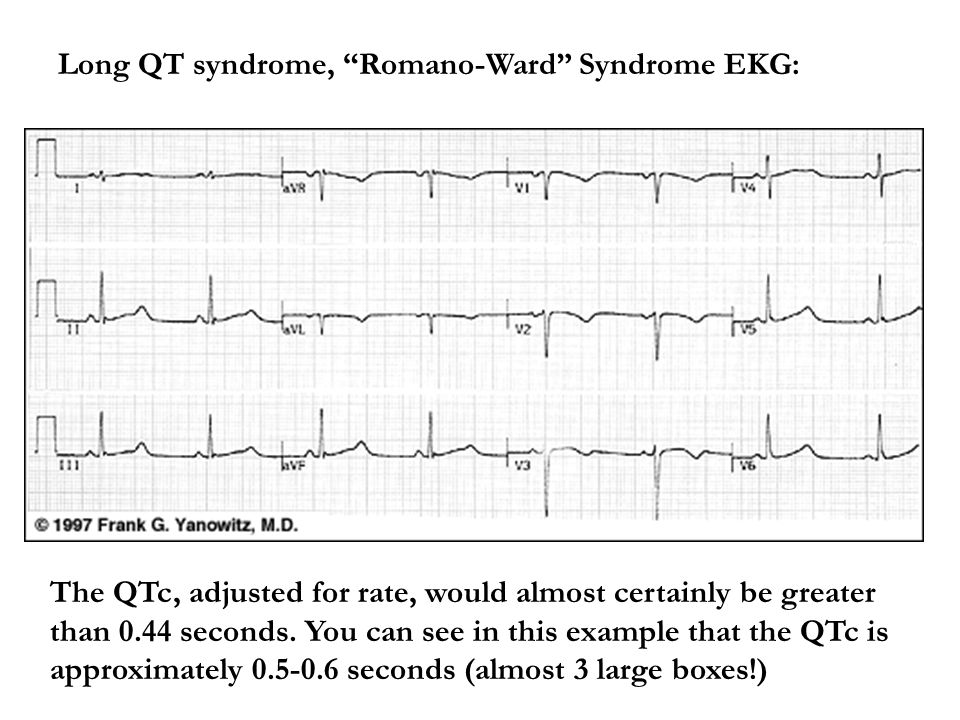 Long QT syndrome, Romano-Ward Syndrome EKG: