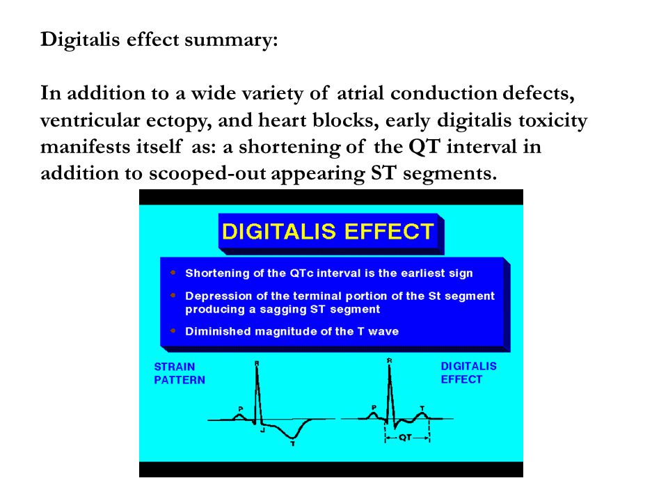 Digitalis effect summary: In addition to a wide variety of atrial conduction defects, ventricular ectopy, and heart blocks, early digitalis toxicity manifests itself as: a shortening of the QT interval in addition to scooped-out appearing ST segments.