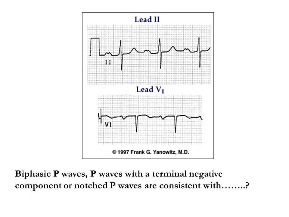 Biphasic P waves, P waves with a terminal negative component or notched P waves are consistent with……..