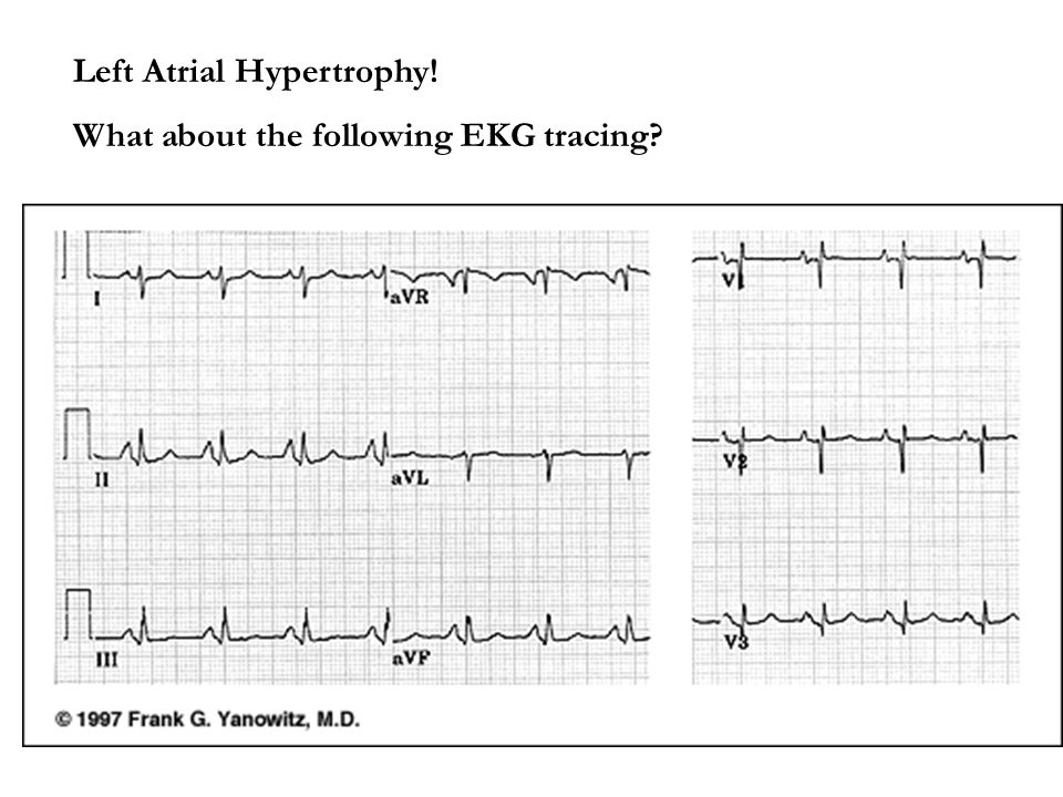 Left Atrial Hypertrophy!