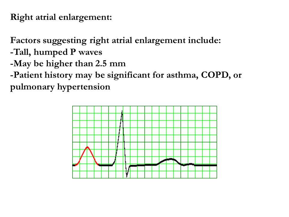 Right atrial enlargement: Factors suggesting right atrial enlargement include: -Tall, humped P waves -May be higher than 2.5 mm -Patient history may be significant for asthma, COPD, or pulmonary hypertension
