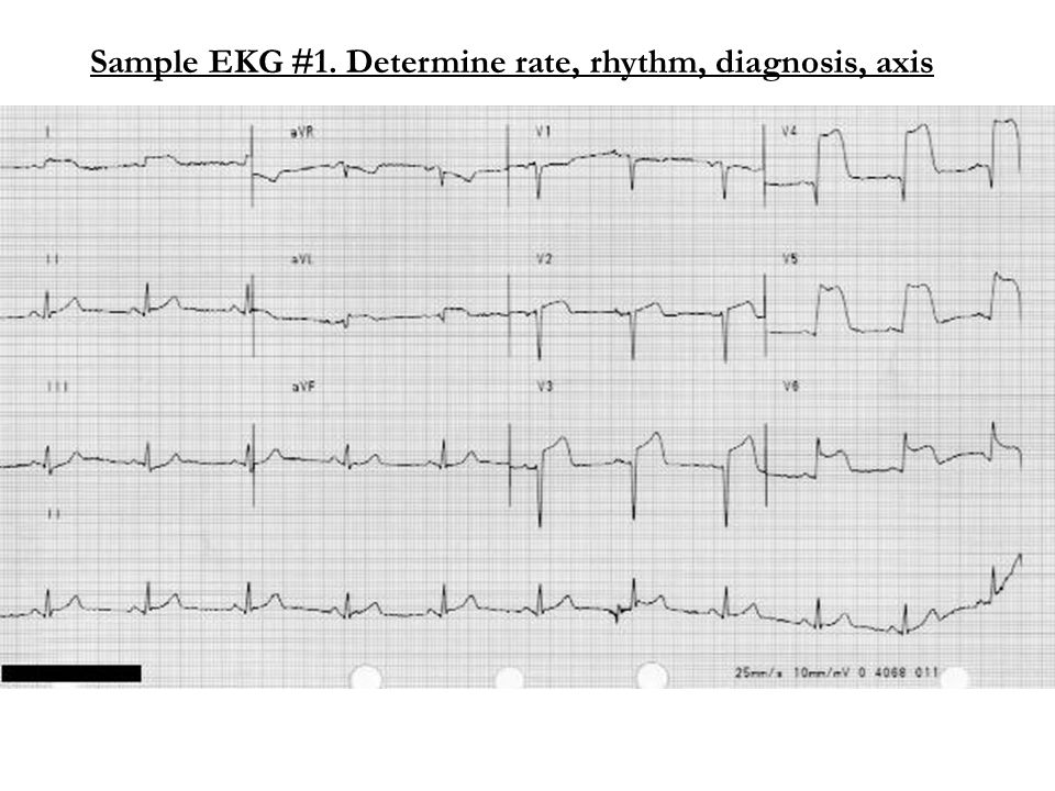 Sample EKG #1. Determine rate, rhythm, diagnosis, axis