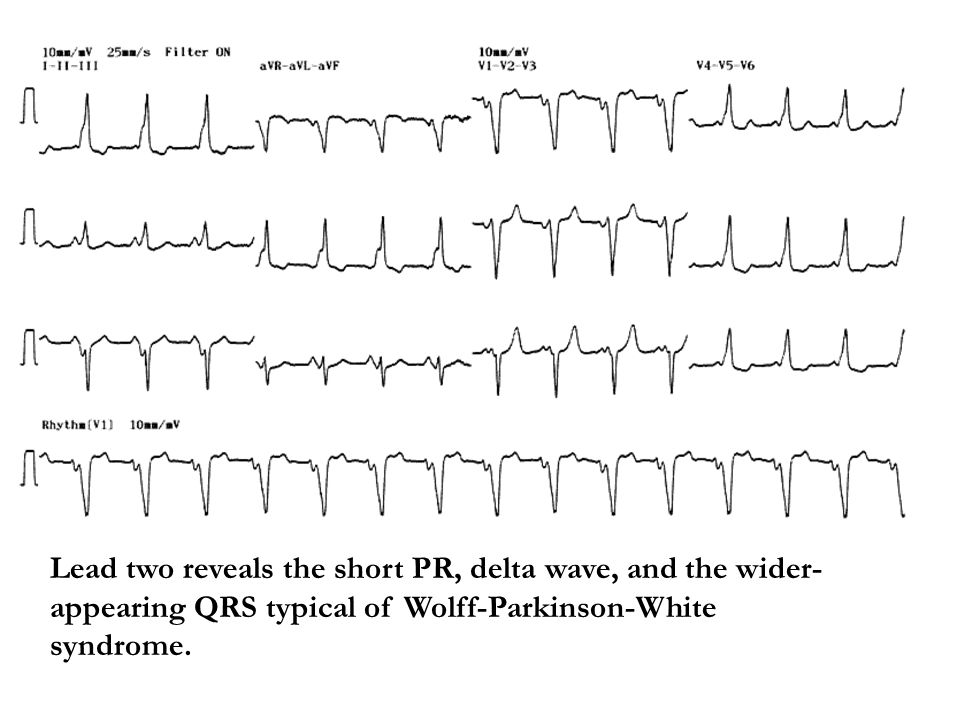 Lead two reveals the short PR, delta wave, and the wider-appearing QRS typical of Wolff-Parkinson-White syndrome.