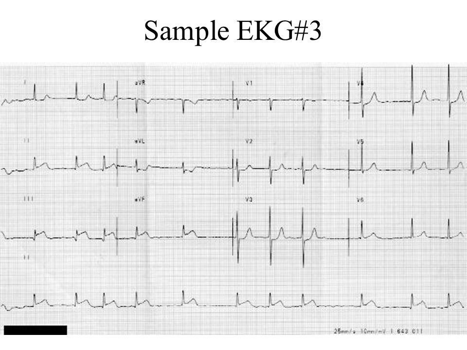 Sample EKG#3