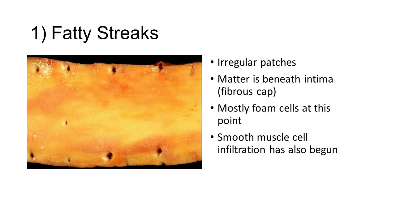 1) Fatty Streaks Irregular patches