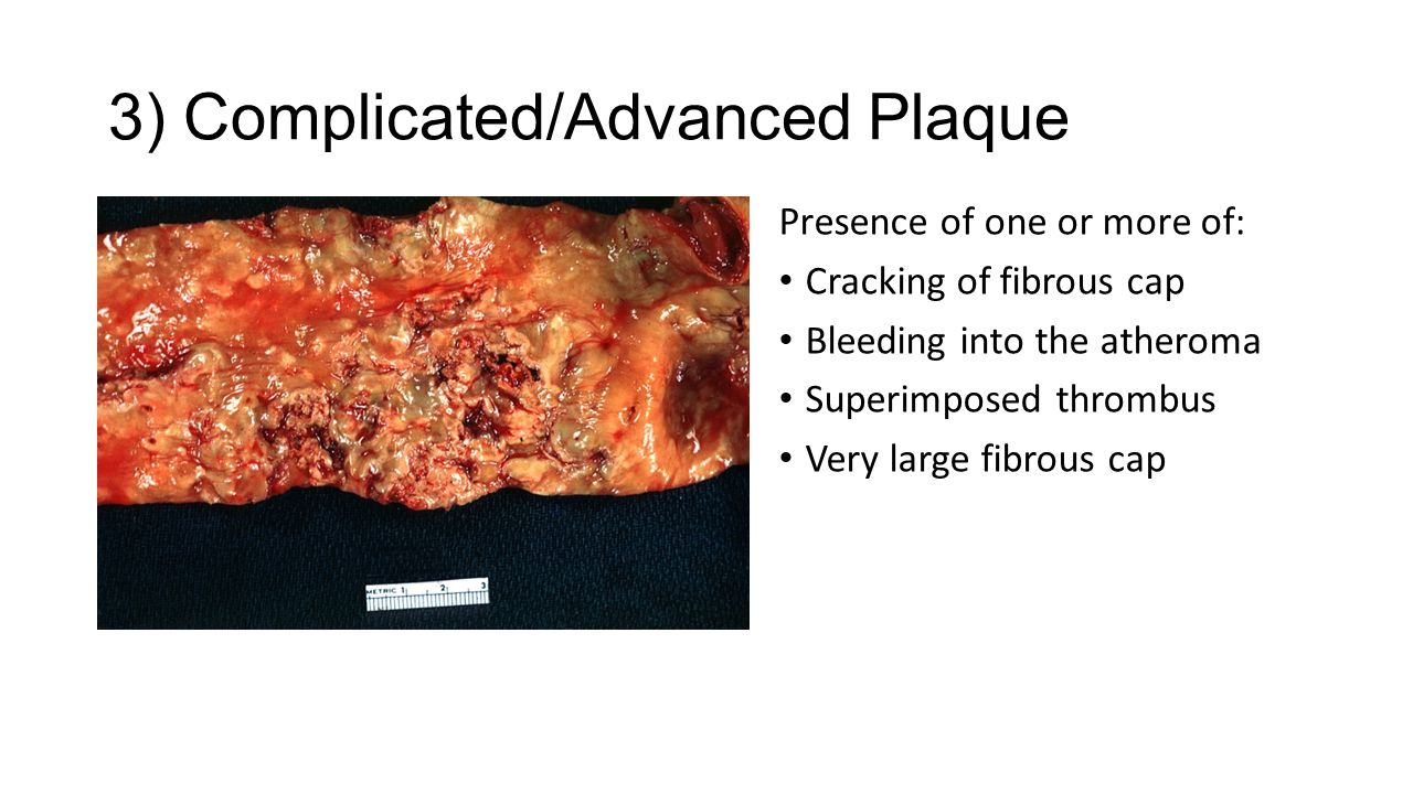 3) Complicated/Advanced Plaque