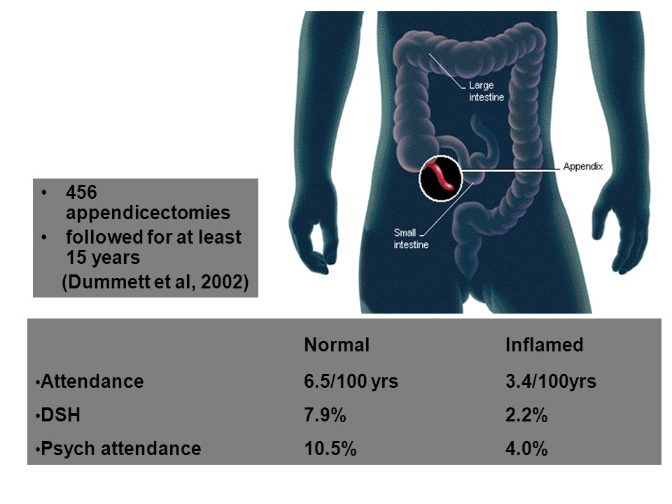 Normal Inflamed 456 appendicectomies followed for at least 15 years
