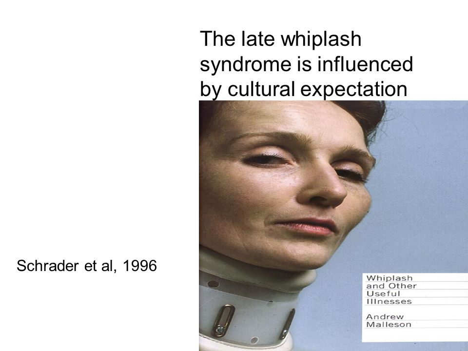The late whiplash syndrome is influenced by cultural expectation