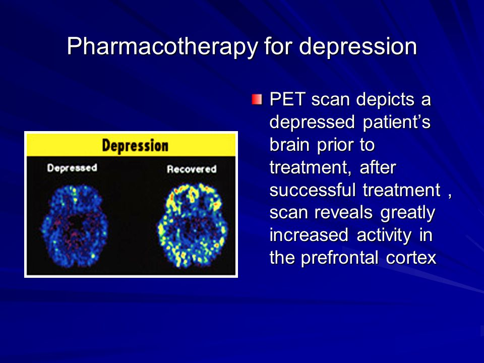 Pharmacotherapy for depression