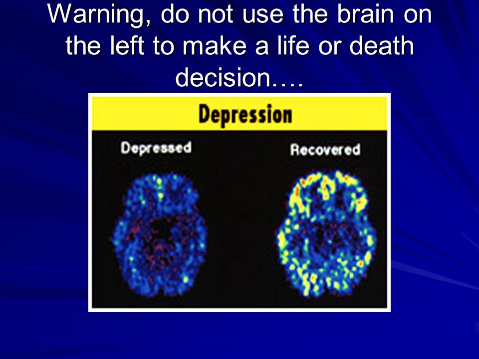 Warning, do not use the brain on the left to make a life or death decision….