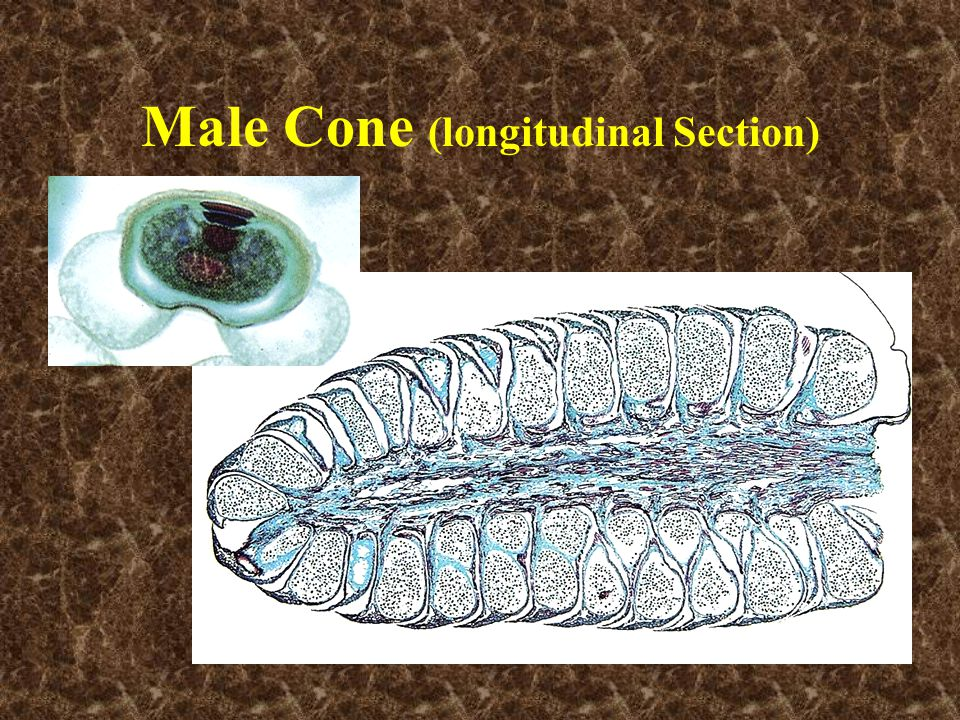 Male Cone (longitudinal Section)