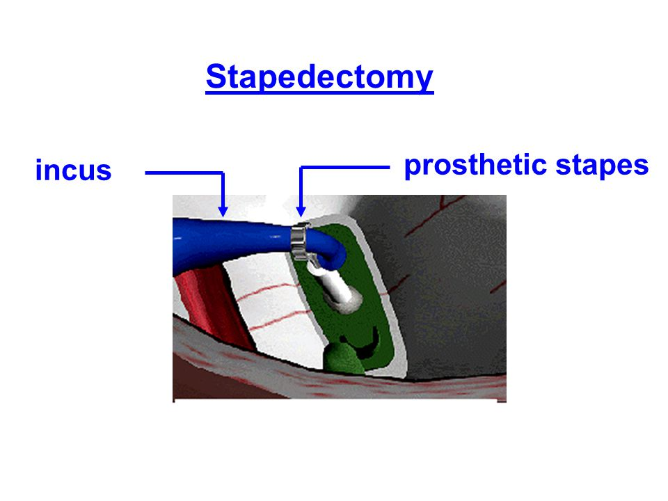 Stapedectomy prosthetic stapes incus