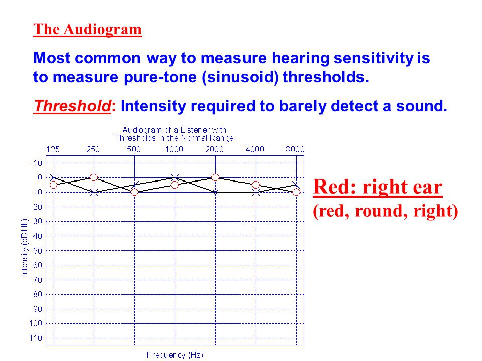 Red: right ear (red, round, right) The Audiogram