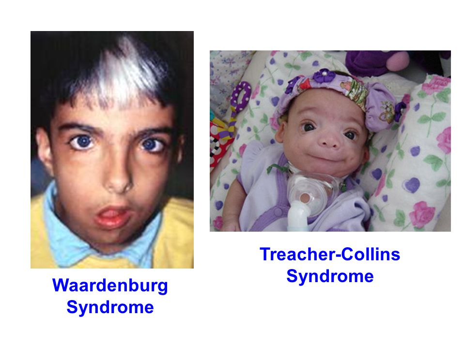 Treacher-Collins Syndrome