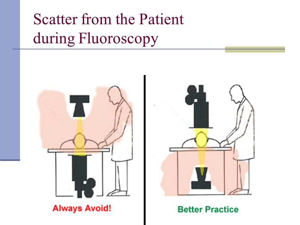 Scatter from the Patient during Fluoroscopy