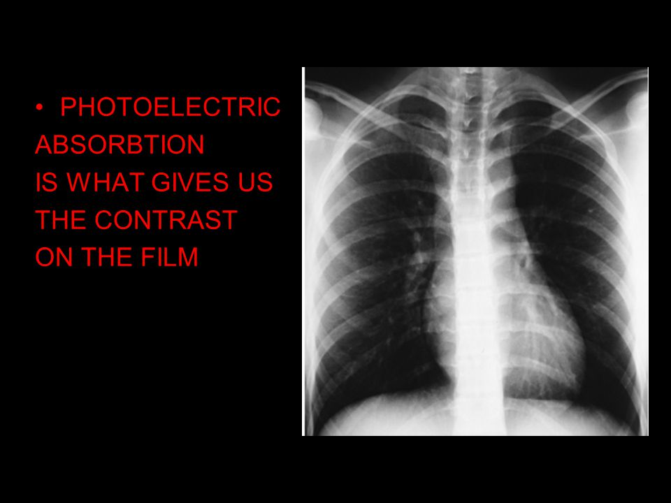 PHOTOELECTRIC ABSORBTION IS WHAT GIVES US THE CONTRAST ON THE FILM