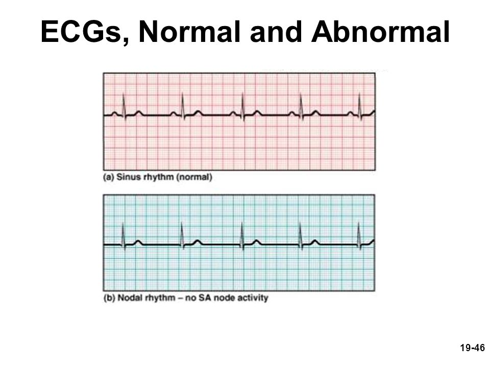 ECGs, Normal and Abnormal
