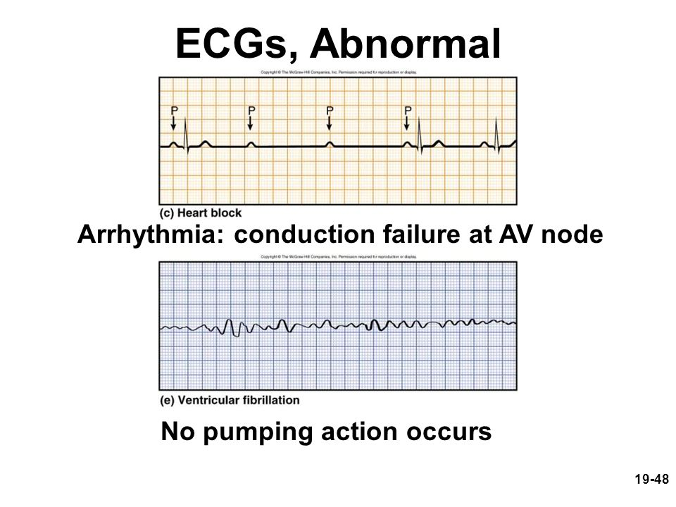 Arrhythmia: conduction failure at AV node No pumping action occurs