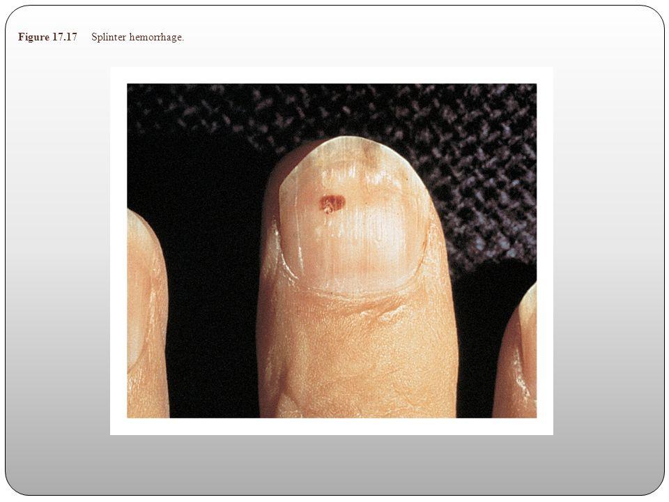 Figure 17.17 Splinter hemorrhage.