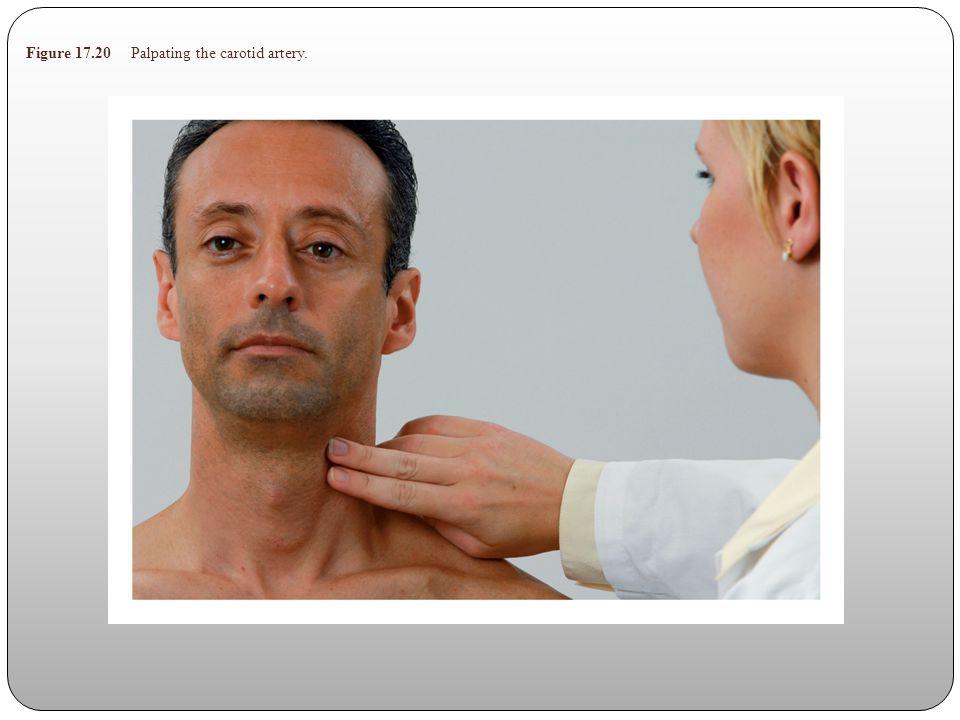 Figure 17.20 Palpating the carotid artery.