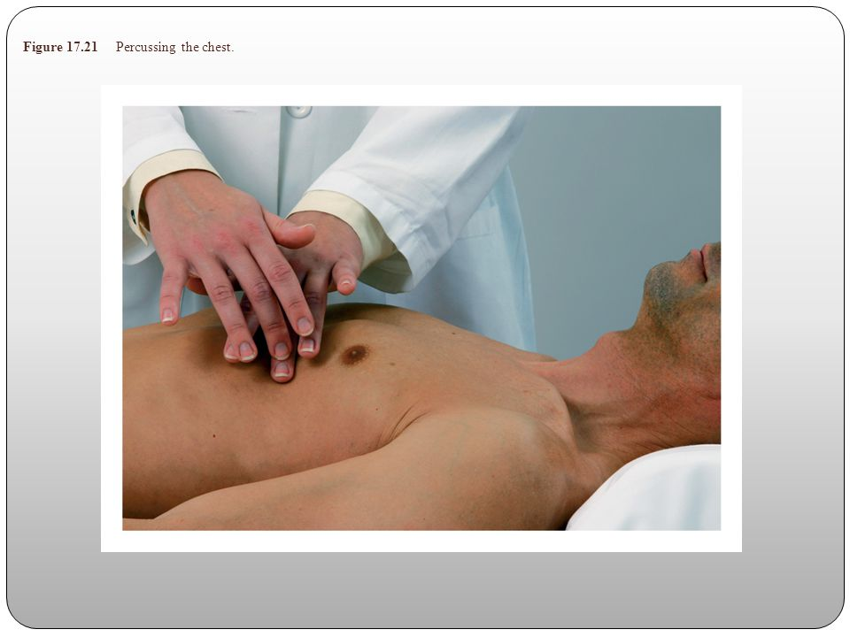 Figure 17.21 Percussing the chest.
