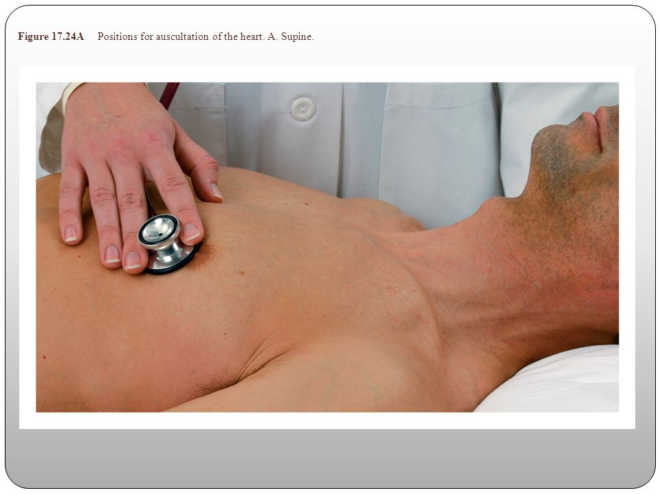 Figure 17.24A Positions for auscultation of the heart. A. Supine.