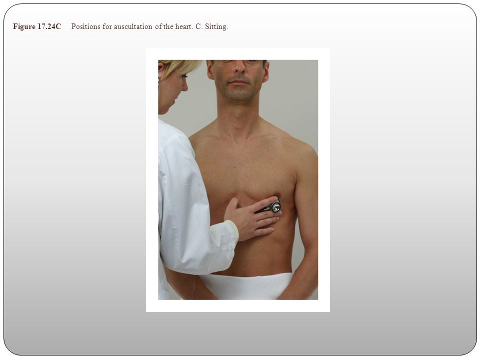 Figure 17.24C Positions for auscultation of the heart. C. Sitting.