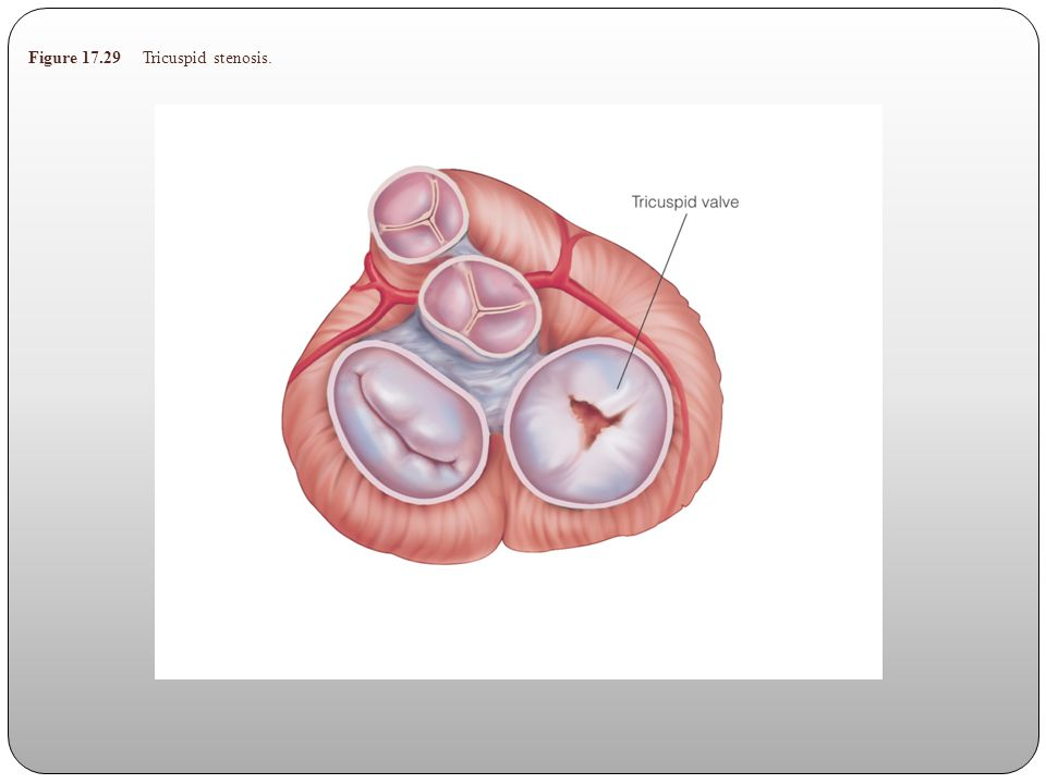 Figure 17.29 Tricuspid stenosis.