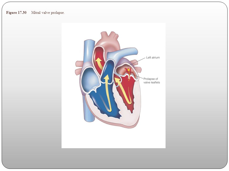 Figure 17.30 Mitral valve prolapse.