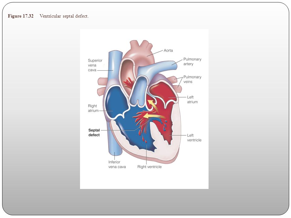 Figure 17.32 Ventricular septal defect.