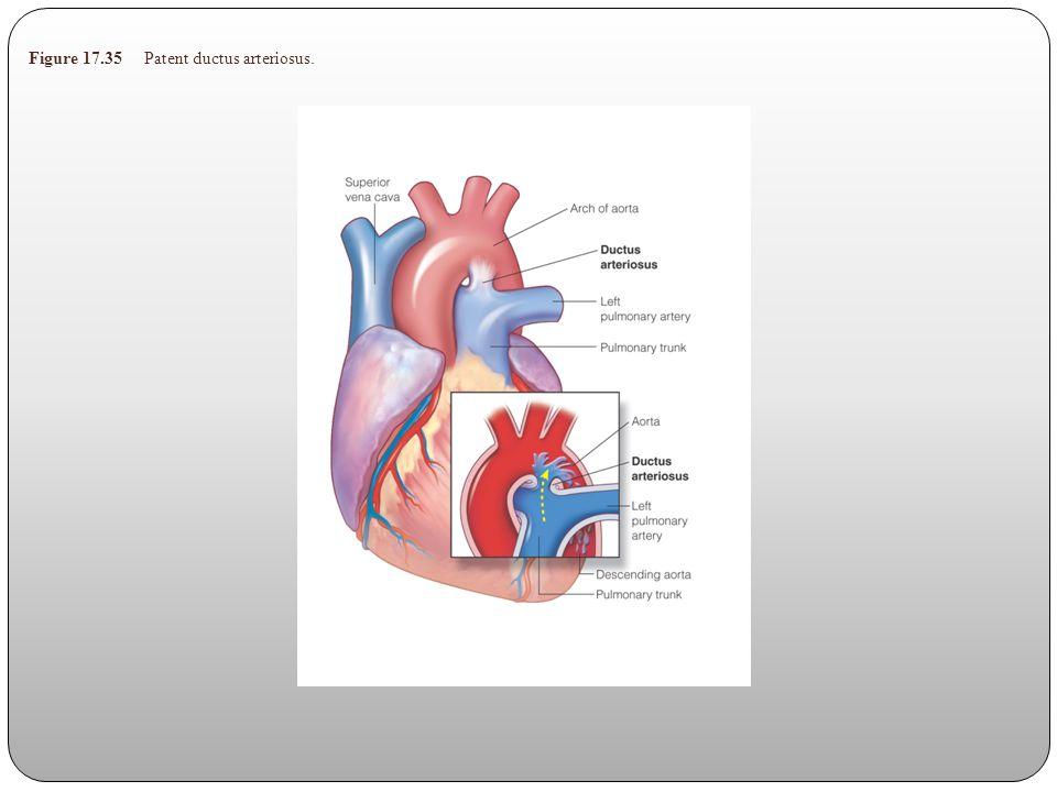Figure 17.35 Patent ductus arteriosus.